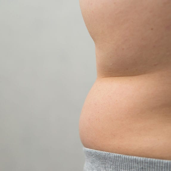 Excess Fat & Skin