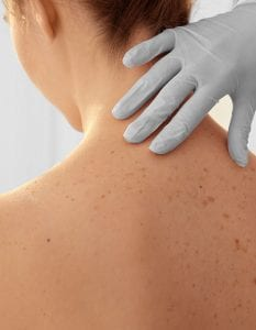 What Is The Treatment For Skin Cancer Anca Breahna